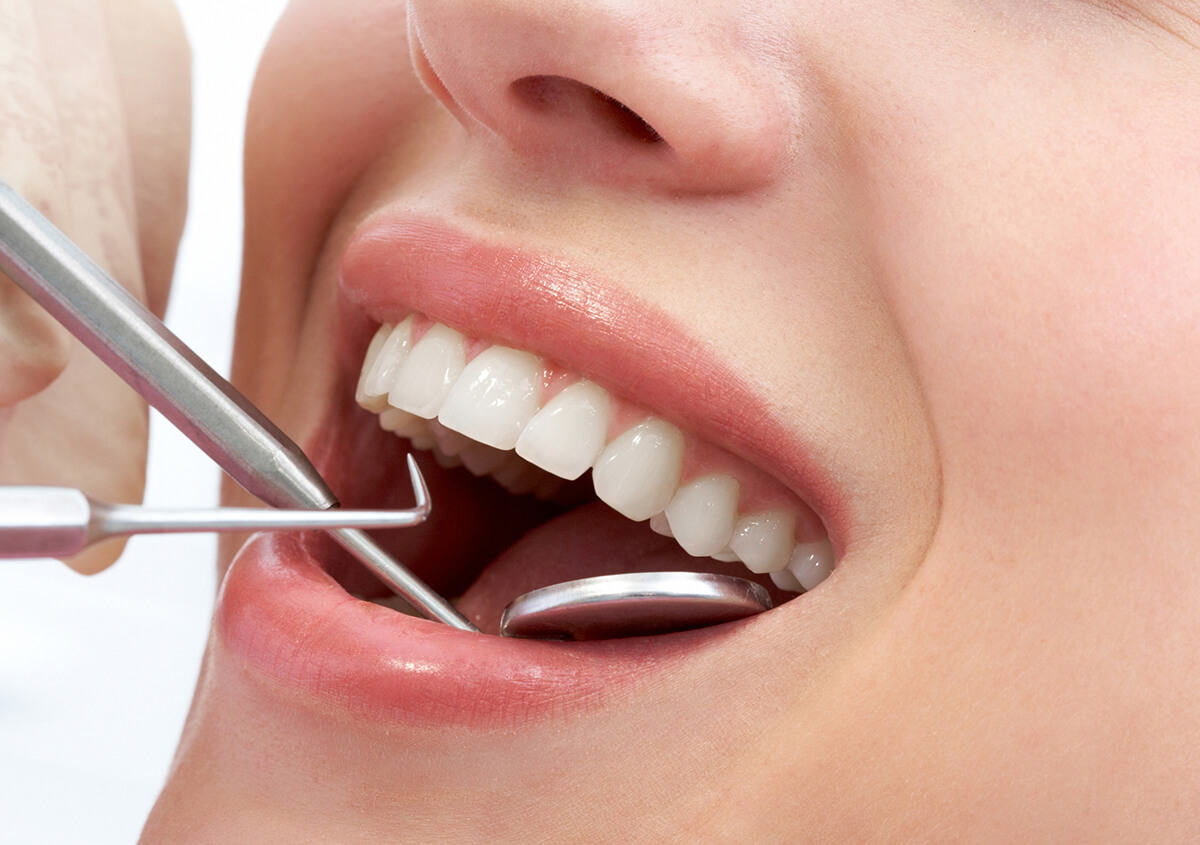 Closeup of teeth examined using dental apperatus